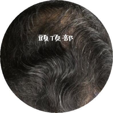 頭頂部イメージ画像